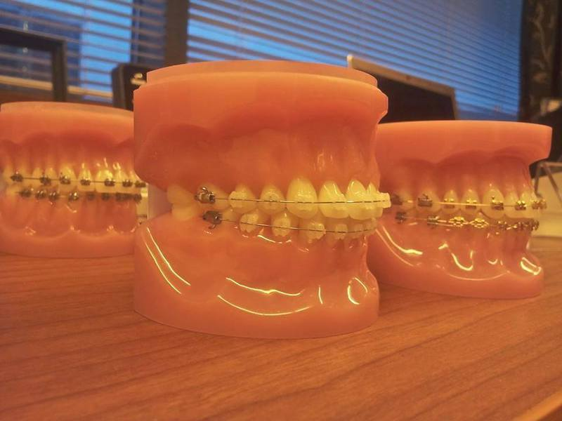 Капа на зубах в домашних условиях